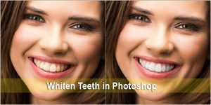 How to make teeth whiter in photoshop. Greatest Specialists working for you.